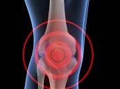 خشونة الركبة الأدوية لا يمكنها القضاء على المرض