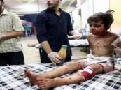 العنف ضد أطفال سوريا وصل إلى مستويات قياسية في 2016