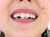 دراسة تحذر: إعوجاج أسنان الطفل مؤشر لسوء تغذية قد يؤدي لإصابته بعدة أمراض