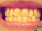 بقع الأسنان الصفراء قد تكون مؤشراً على تلف الأعصاب
