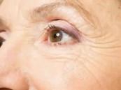 5 نصائح مفيدة لحماية الجلد حول العيون