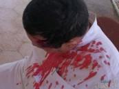 كاميرات تكشف تفاصيل اعتداء الملثمين الـ9 على قائد مدرسة بالرياض