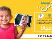 """""""مالك الموسى"""" يعلنها: #مستشفى_الموسى جاهز لعلاج """"الشفة المشقوقة"""" لأطفالنا مجاناً"""