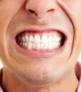 طريقة بسيطة للتخلص من جير الأسنان نهائيًا في 10 أيام