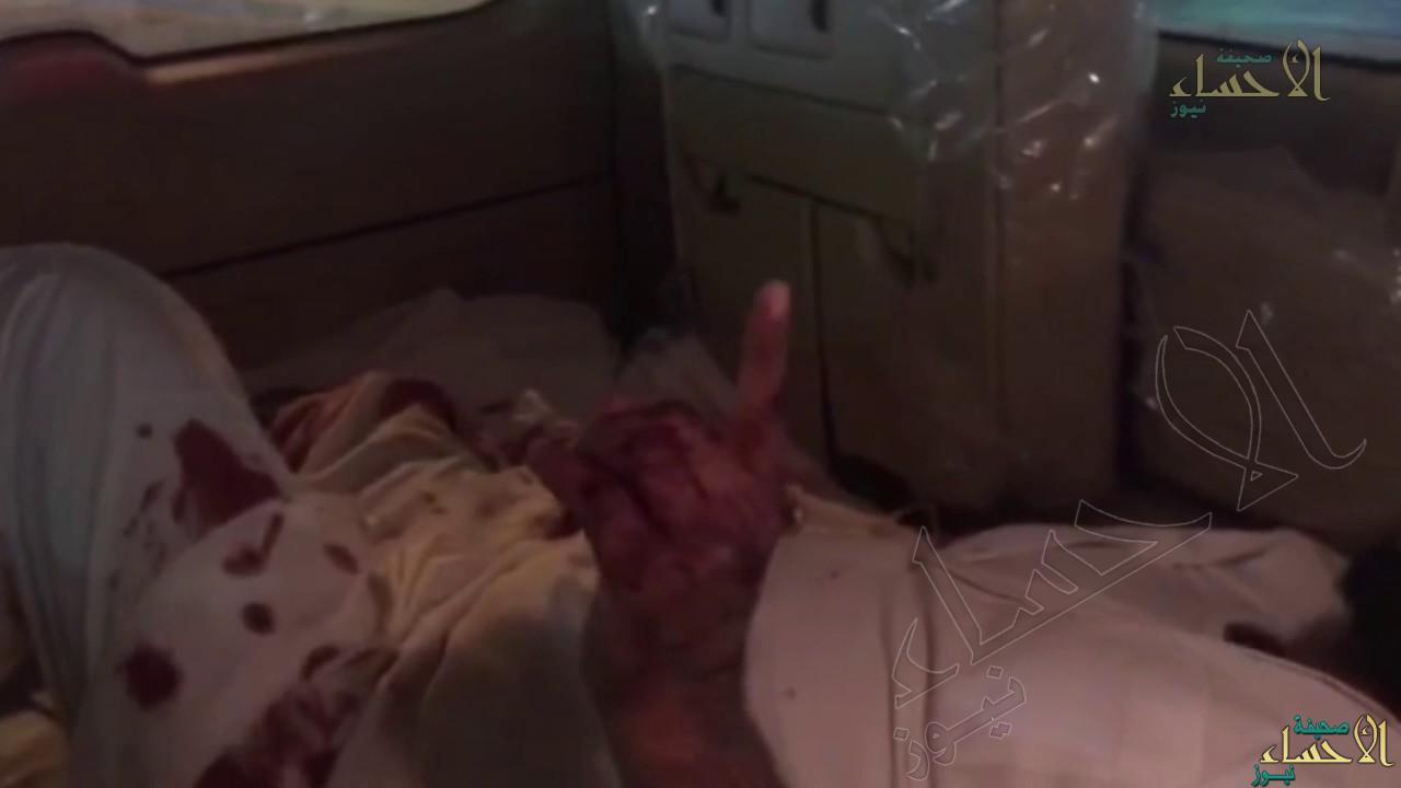 شاهد بالفيديو… مواطن مصاب تكسوه الدماء يناشد مسؤولي #الأحساء على طريقته الخاصة