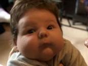 ولادة أضخم طفل في العالم فى 16ساعة و20 طبيب