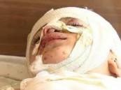 """بالفيديو … """"بابا خليك"""" رجاء طفل فلسطيني لأبيه بعد تعرضهم للقصف"""
