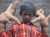 طفل هندي يترك الدراسة بسبب كفه العملاق