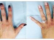 امرأة تنفق 3000 دولار لتجميل يديها لتبدو أفضل بصور «فيسبوك»