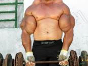 بالصور …. برازيلي يحقن ذراعه بكوكتيل مميت للحصول على عضلات باباي