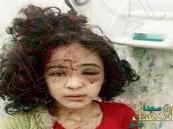 """""""حقوق الإنسان"""" تكشف حقيقة مقطع طفلة تعرضت للتعذيب بوحشية على يد والدها"""