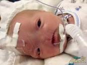 ولادة طفل بدون أنف في الولايات المتحدة الأمريكية
