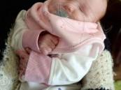 بالصور… بريطانية تنجب طفلة بدون عينين