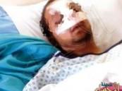 """جراحة بـ""""الأنف"""" تودي بحياة شاب سعودي في الأردن"""