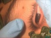 """بالفيديو… أطباء يستخدمون أوراق الريحان لانتزاع """"دودة"""" من عين مراهق"""