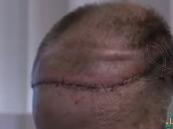 بالفيديو … زراعة جمجمة وفروة رأس لمريض بالسرطان لأول مرة