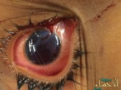 خطر الألعاب النارية.. يتسبب بفقد عين طفل