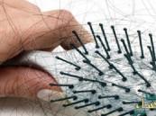 هذه أبرز أسباب تساقط الشعر وطرق العلاج الطبيعية والكيميائية