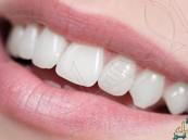 ابتكار مادة هلامية تجدد مينا الأسنان