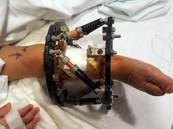 تقنية أمريكية بإيدي سعودية تنقذ ساق طفلة من البتر في مستشفى الموسى