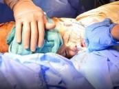 نجاح عملية فصل التوأم السيامي السوري (تقى ويقين)