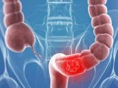 6 نصائح للوقاية من سرطان القولون