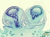 علماء: أبحاث السرطان تتوقع القضاء عليه خلال عامين