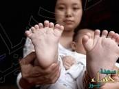 الصين: تُسجل ولادة طفل نادرة الحدوث…!