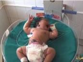بالفيديو… شاهد ولادة أثقل طفل بالعالم