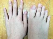 بالصور.. فتاة من تايوان تحير الجميع بأصابع قدميها !!