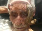 """بالصور.. نقل مواطن بـ""""قرنين"""" إلى المستشفى العسكري بالجوف بعد كسر أحدهما !"""