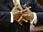 هل طقطقة الأصابع مضرة كما يُقال؟ وإلى أي مدى؟