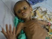 الصحة العالمية: الكوليرا تضرب نصف محافظات اليمن