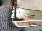 بالصورة.. امرأة محظوظة أنقذها هاتفها من الموت في #تفجير_مانشستر !