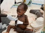 الكوليرا تودي بحياة 60 شخصاً في جنوب السودان