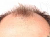 طرق طبيعية تُحفز نمو الشعر .. تعرّف عليها قبل فوات الأوان !!