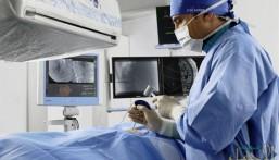 علاج ألياف الرحم بالأشعة التداخلية بمستشفى الملك فهد بالهفوف