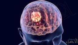 هل ينجح الليزر في علاج سرطان الدماغ ؟!