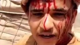 شاهد… هذه هي عزيمتهم.. مقطع لجندي ينزف بالحد الجنوبي يتوعد الحوثيين