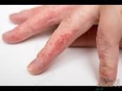 الإحمرار والجفاف… أهم أعراض الإكزيما