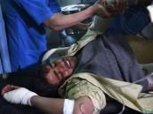 كابل.. هجوم المجمع الحكومي يسقط 43 قتيلا