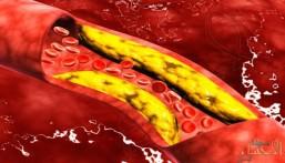 5 أطعمة تخفض الكوليسترول.. تعرف عليها