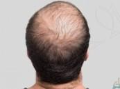 """""""بنك الشعر"""" !! .. تقنية جديدة لعلاج الصلع"""