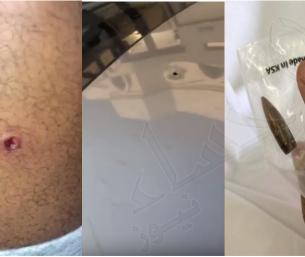 بالفيديو .. قصة مرعبة عن شاب بالأحساء اخترقت جسده رصاصة طائشة وهو يقود سيارته!!