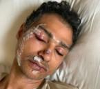 المواطن المُعتدَى عليه في ماليزيا يكشف التفاصيل: استفز شقيقي وأساء للمملكة !!