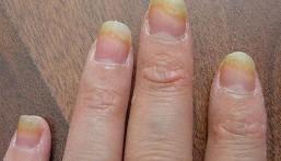 فطريات الأظفار.. خطرٌ على كبار السن لقلّة تدفق الدم