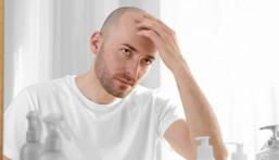 خبراء… احذروا العلاجات التقليدية للصلع