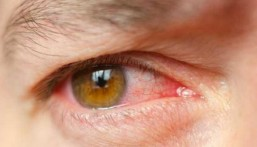 """هذه أبرز أعراض ومسببات """"إنفلونزا العيون""""… احذروها!"""