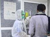 إصابات كورونا تجاوز 18 مليونًا حول العالم.. والوفيات 688 ألفًا