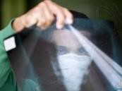 أطباء يحذرون: ظاهرة غريبة تحدث للمصابين بكورونا !!